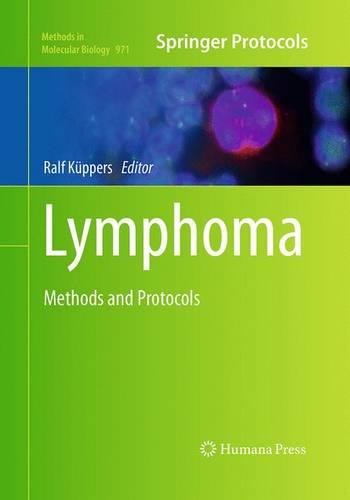 Lymphoma: Methods and Protocols - Methods in Molecular Biology 971 (Paperback)