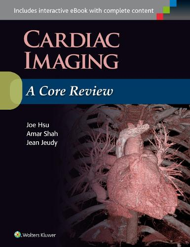 Cardiac Imaging: A Core Review (Paperback)