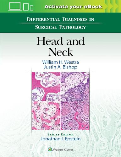 Differential Diagnoses in Surgical Pathology: Head and Neck (Hardback)