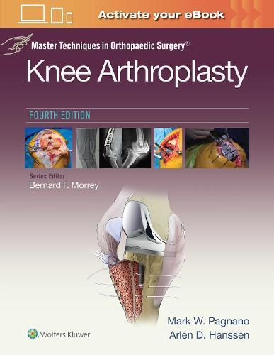 Master Techniques in Orthopedic Surgery: Knee Arthroplasty - Master Techniques in Orthopaedic Surgery (Hardback)