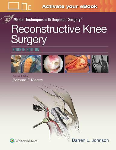Master Techniques in Orthopaedic Surgery: Reconstructive Knee Surgery - Master Techniques in Orthopaedic Surgery (Hardback)