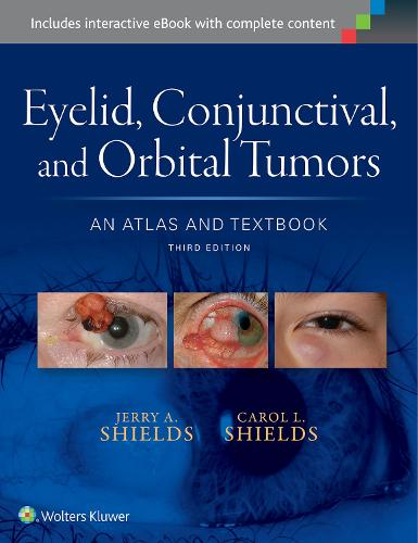 Eyelid, Conjunctival, and Orbital Tumors: An Atlas and Textbook (Hardback)