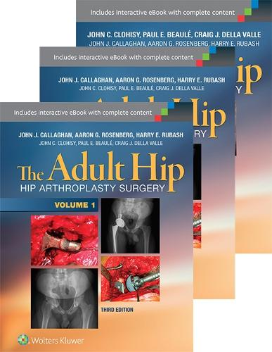 The Adult Hip 3-Volume Package: Arthroplasty and its Alternatives and Hip Preservation Surgery