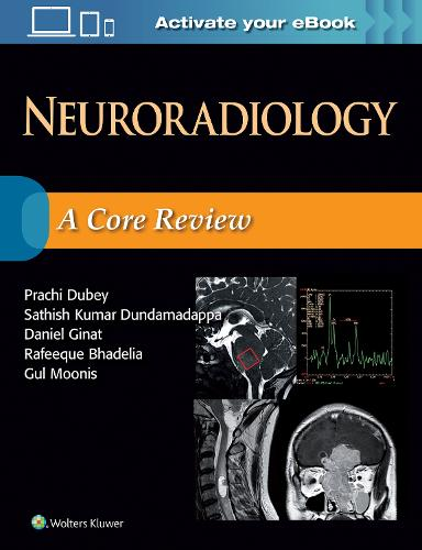 Neuroradiology: A Core Review (Paperback)