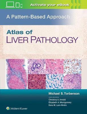 Atlas of Liver Pathology: A Pattern-Based Approach (Hardback)
