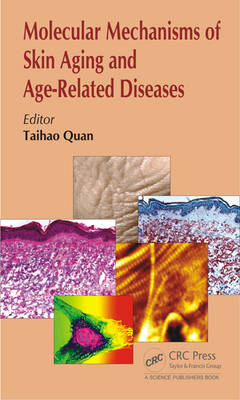 Molecular Mechanisms of Skin Aging and Age-Related Diseases (Hardback)