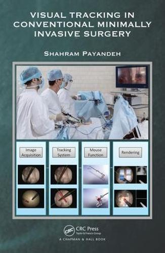 Visual Tracking in Conventional Minimally Invasive Surgery (Hardback)