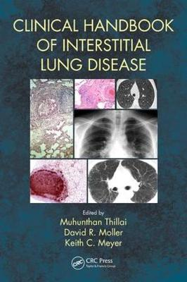 Clinical Handbook of Interstitial Lung Disease (Paperback)