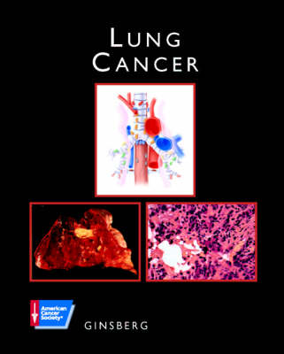 Lung Cancer: ACS Atlas of Clinical Oncology - American Cancer Society Atlas of Clinical Oncology (Hardback)