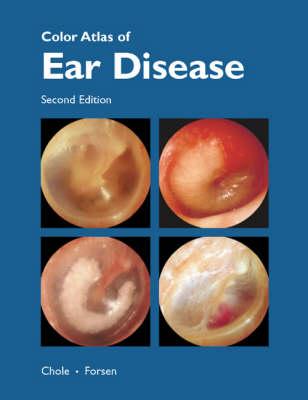 Colour Atlas of Ear Disease (Hardback)