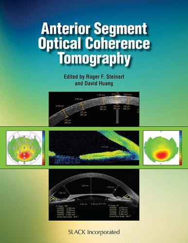 Anterior Segment Optical Coherence Tomography (Hardback)