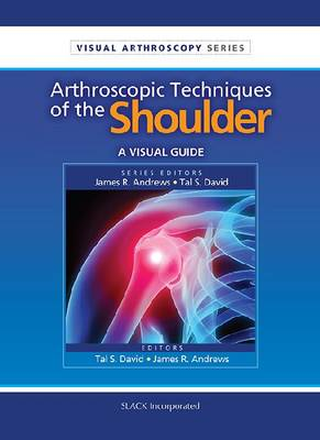 Arthroscopic Techniques of the Shoulder: A Visual Guide - Visual Arthroscopy (Paperback)