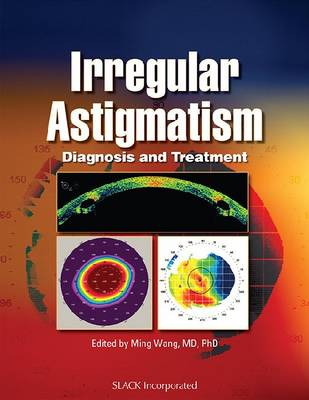 Irregular Astigmatism: Diagnosis and Treatment (Hardback)