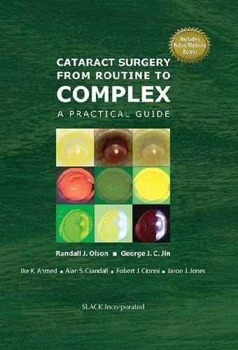 Cataract Surgery from Routine to Complex: A Practical Guide (Hardback)