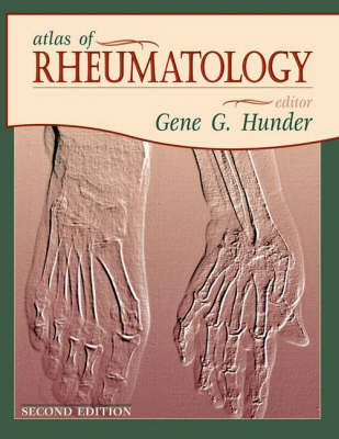Atlas of Rheumatology (Hardback)