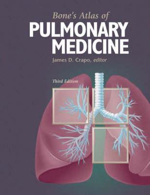 Bone's Atlas of Pulmonary Medicine (Hardback)