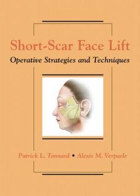 Short-Scar Face Lift: Operative Strategies and Techniques (Hardback)
