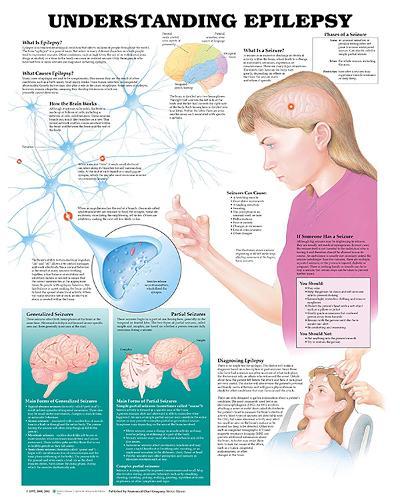 Understanding Epilepsy Anatomical Chart (Wallchart)