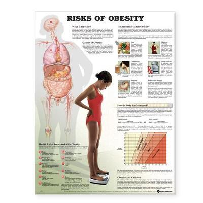 Risks of Obesity Anatomical Chart (Wallchart)