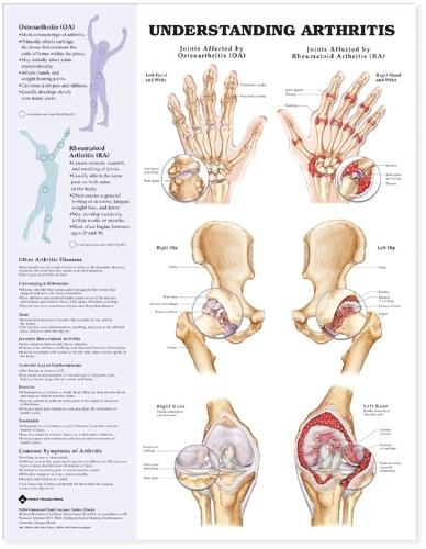 Understanding Arthritis Anatomical Chart (Wallchart)