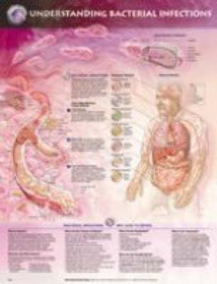 Understanding Bacterial Infections Chart (Wallchart)