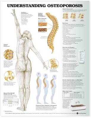Understanding Osteoporosis Anatomical Chart (Wallchart)