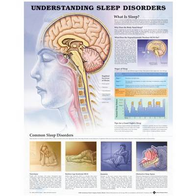 Understanding Sleep Disorders Anatomical Chart (Wallchart)