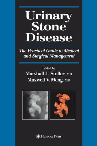 Urinary Stone Disease: The Practical Guide to Medical and Surgical Management - Current Clinical Urology (Hardback)