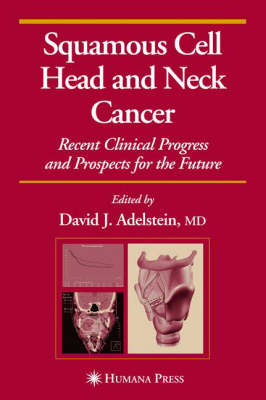 Squamous Cell Head and Neck Cancer: Recent Clinical Progress and Prospects for the Future - Current Clinical Oncology (Hardback)