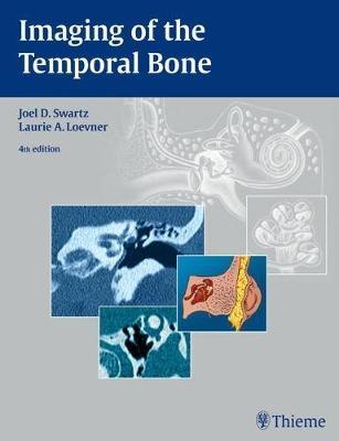 Imaging of the Temporal Bone (Hardback)