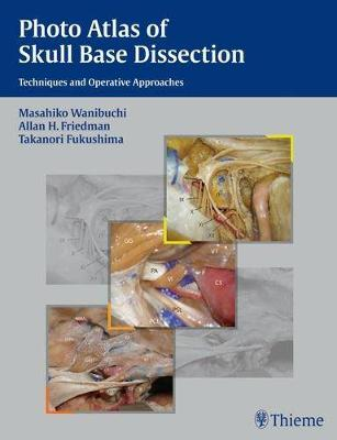 Photo Atlas of Skull Base Dissection: Techniques and Operative Approaches (Hardback)