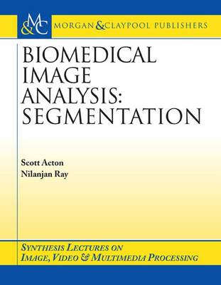 Biomedical Image Analysis: Segmentation - Synthesis Lectures on Image, Video, and Multimedia Processing (Paperback)