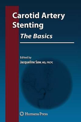 Carotid Artery Stenting: The Basics - Contemporary Cardiology (Hardback)