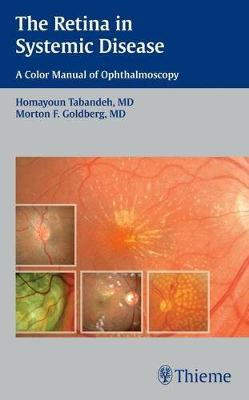 The Retina in Systemic Disease: A Color Manual of Ophthalmoscopy (Paperback)