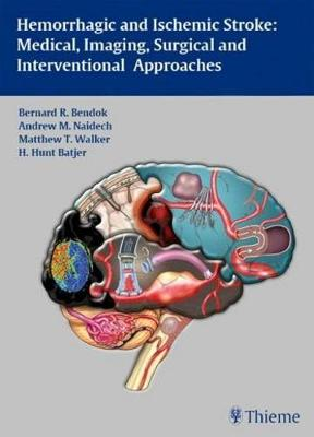 Hemorrhagic and Ischemic Stroke: Medical, Imaging, Surgical and Interventional Approaches (Hardback)