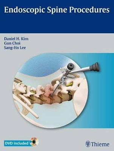 Endoscopic Spine Procedures (Hardback)