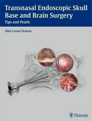 Transnasal Endoscopic Skull Base and Brain Surgery: Tips and Pearls (Hardback)