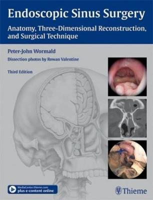 Endoscopic Sinus Surgery: Anatomy, Three-Dimensional Reconstruction, and Surgical Technique (Hardback)