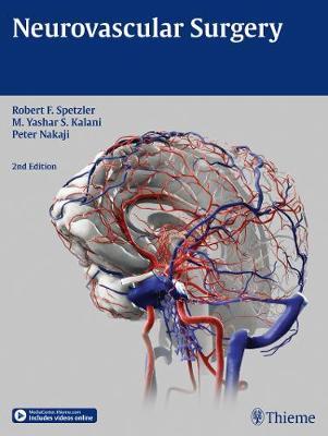 Neurovascular Surgery (Hardback)