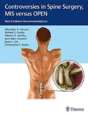 Controversies in Spine Surgery, MIS versus OPEN: Best Evidence Recommendations (Hardback)