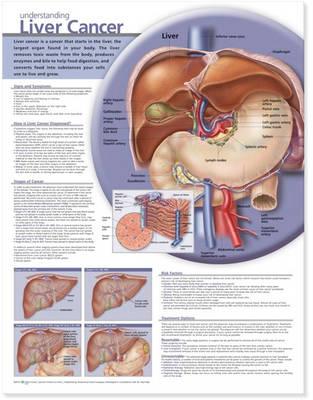 Understanding Liver Cancer Anatomical Chart (Wallchart)