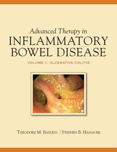Advanced Therapy of IBD: Volume 1: Ulcerative Colitis (Hardback)