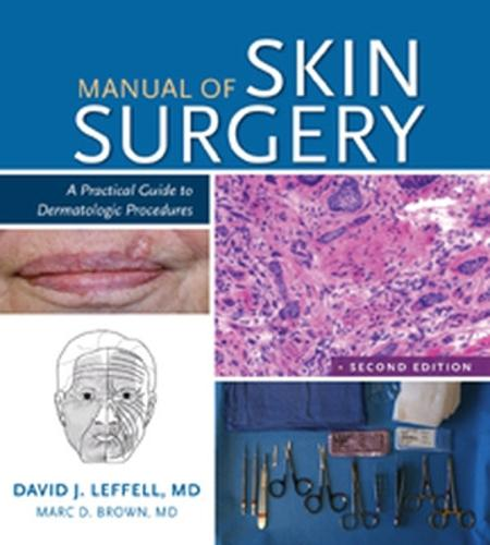 Manual of Skin Surgery: A Practical Guide to Dermatologic Procedures (Paperback)