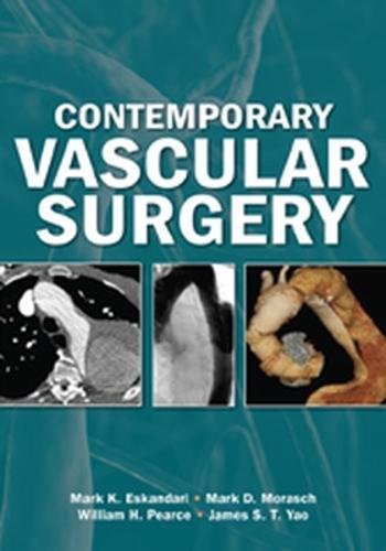 Contemporary Vascular Surgery (Hardback)