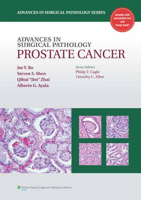 Advances in Surgical Pathology: Prostate Cancer - Advances in Surgical Pathology (Hardback)