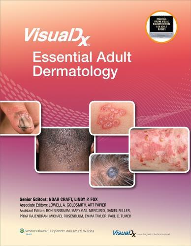 VisualDx: Essential Adult Dermatology - VisualDx: The Modern Library of Visual Medicine (Hardback)