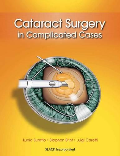 Cataract Surgery in Complicated Cases (Hardback)