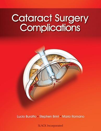 Cataract Surgery Complications (Hardback)