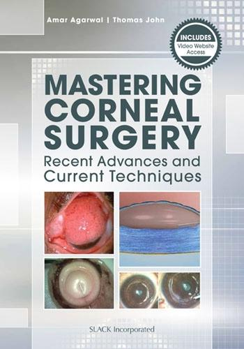 Mastering Corneal Surgery: Recent Advances and Current Techniques (Paperback)
