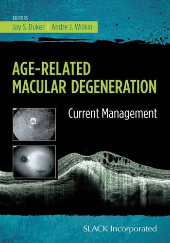 Age-Related Macular Degeneration: Current Management (Paperback)